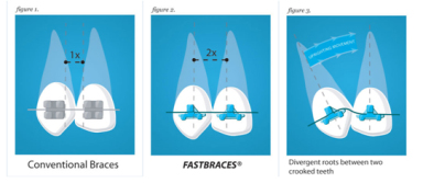 fastbraces2_srcset-large